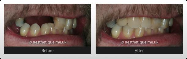 implant-case-1
