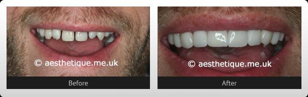 Smile Gallery Leeds | Cosmetic Dentist Leeds | Invisalign