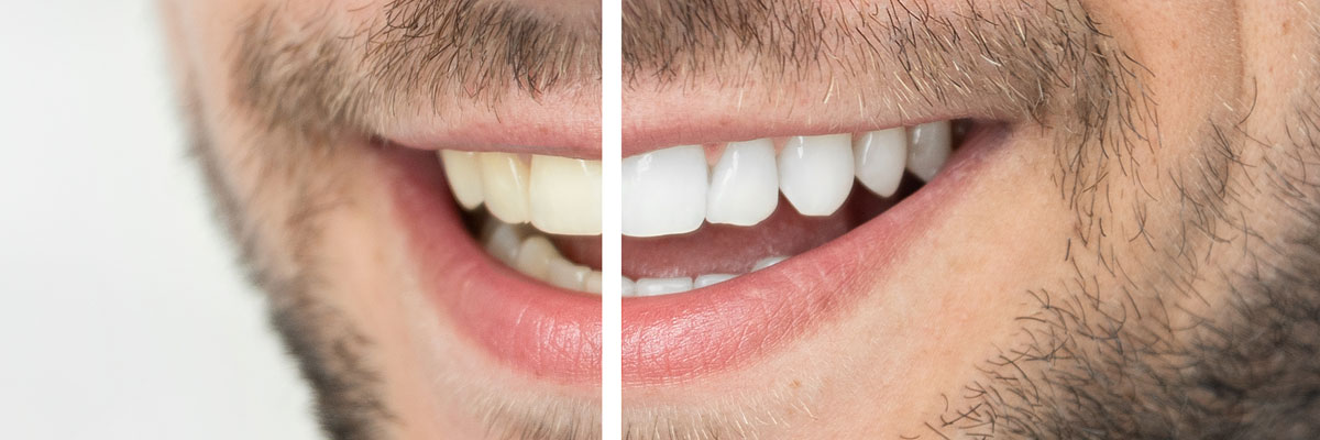 Whiter Smile Before and After
