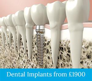 dental-implants-1800